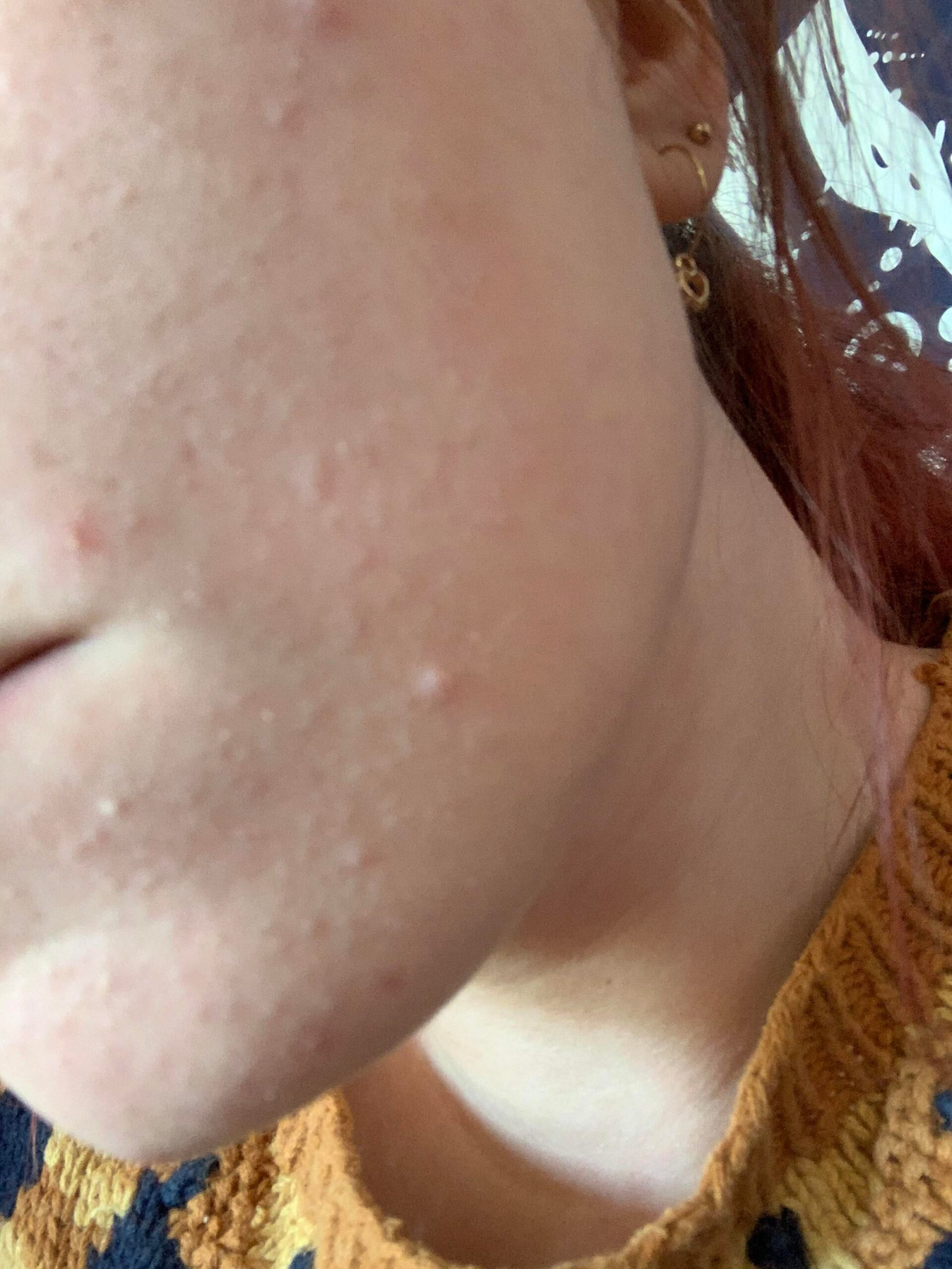 [acne] tiny bumps on my chin help! More details in comments