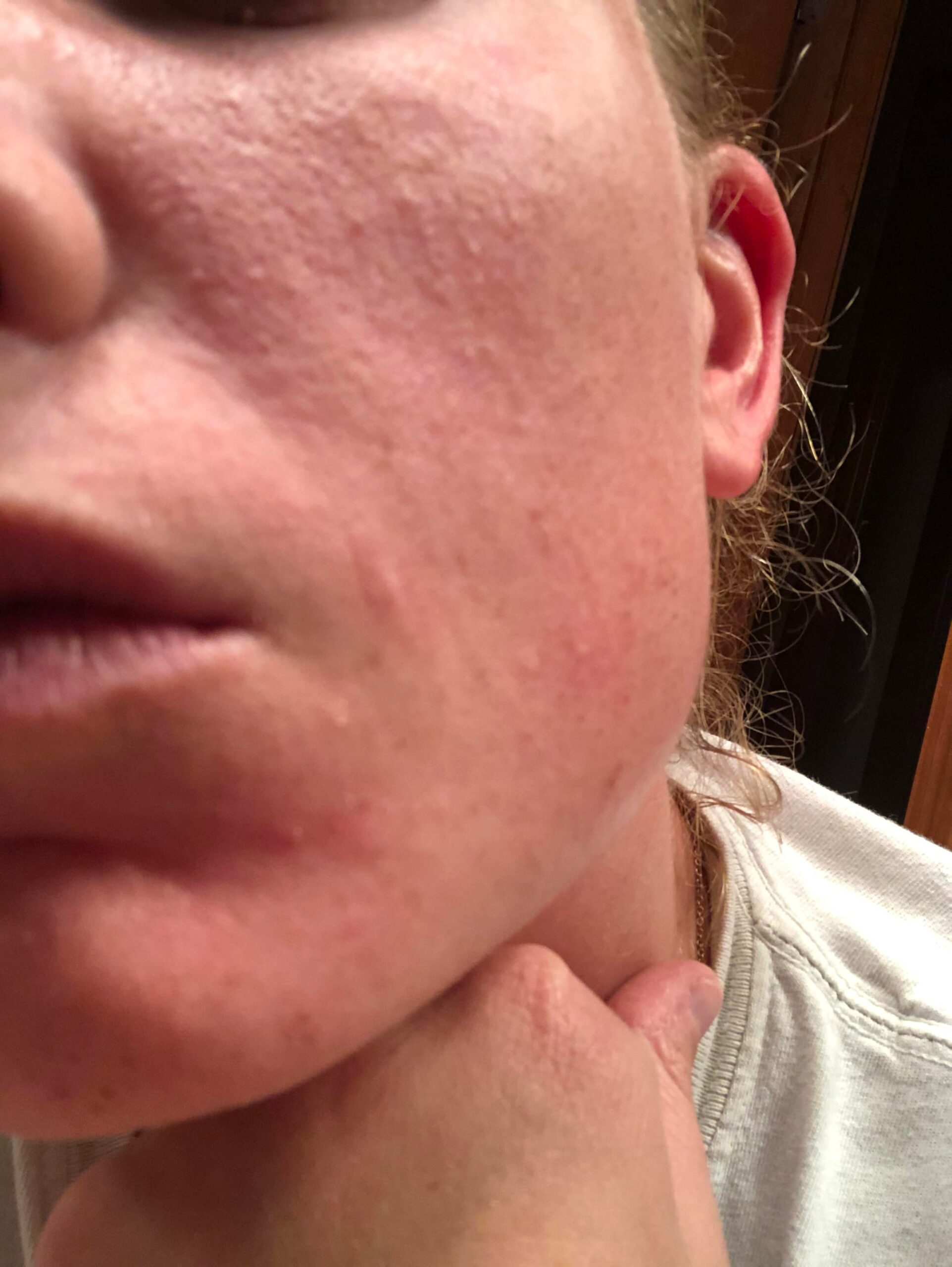 [Skin concerns] Retinol purge…or what's going on?!