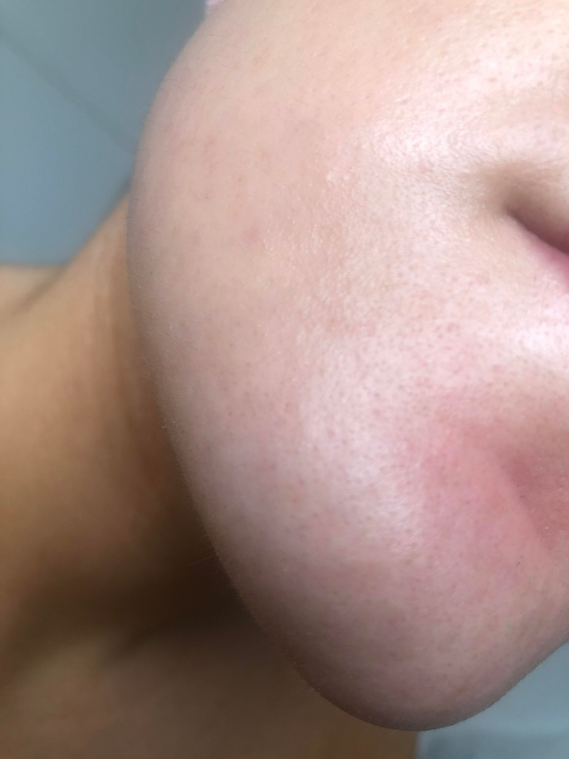 [skin concern] how do I get rid of these tiny bumps all over my chin/what are they?? (Picture doesn't show them very well) Please help. I recently added Azelaic acid to help with my textural issues but it's made these bumps worse