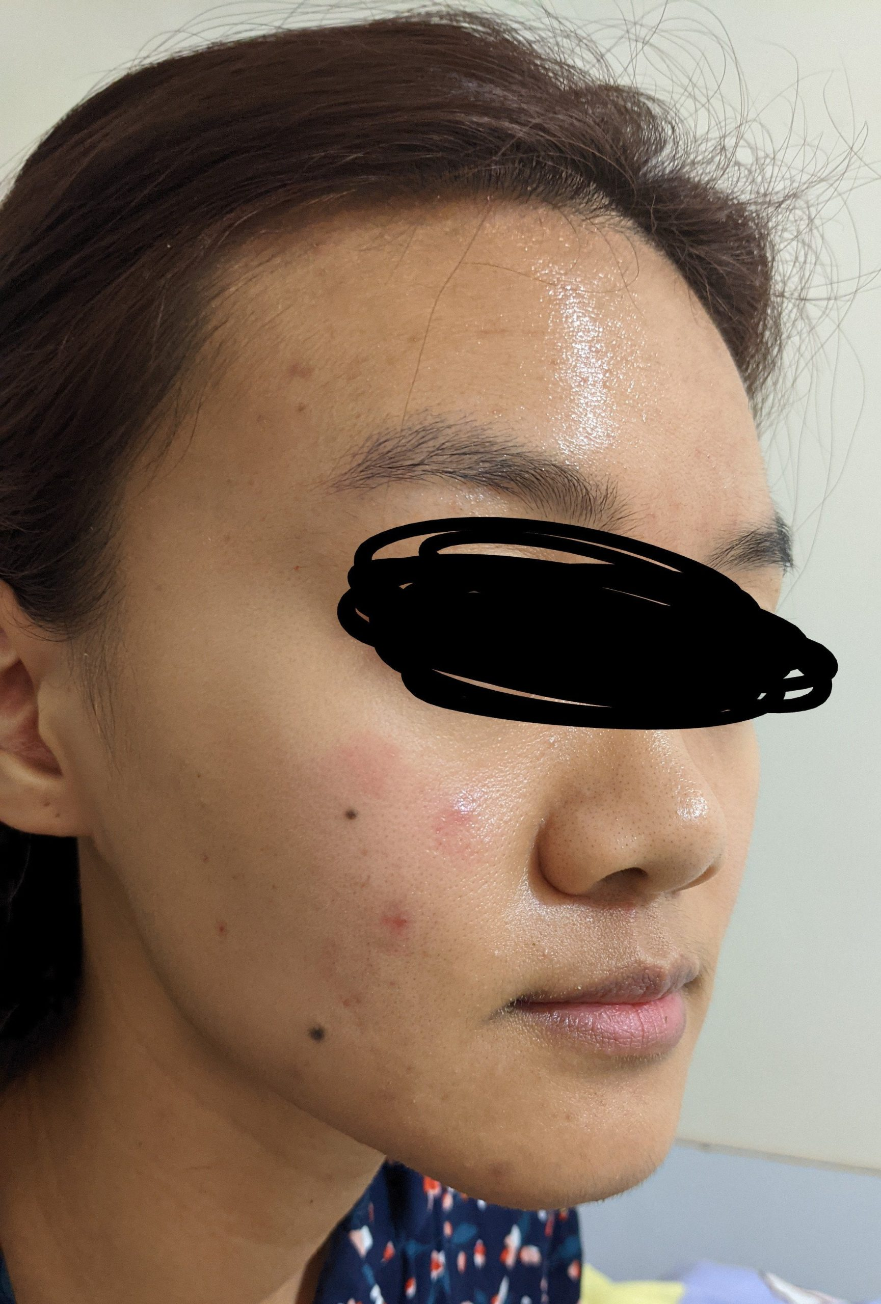 [Acne] Different acne related skincare and how to add into routine?