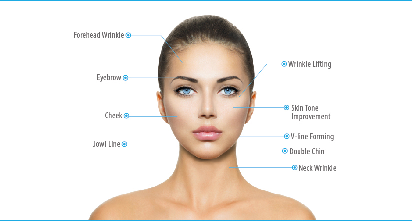 Why 3D HIFU Non-Surgical Skin Lifting is superior