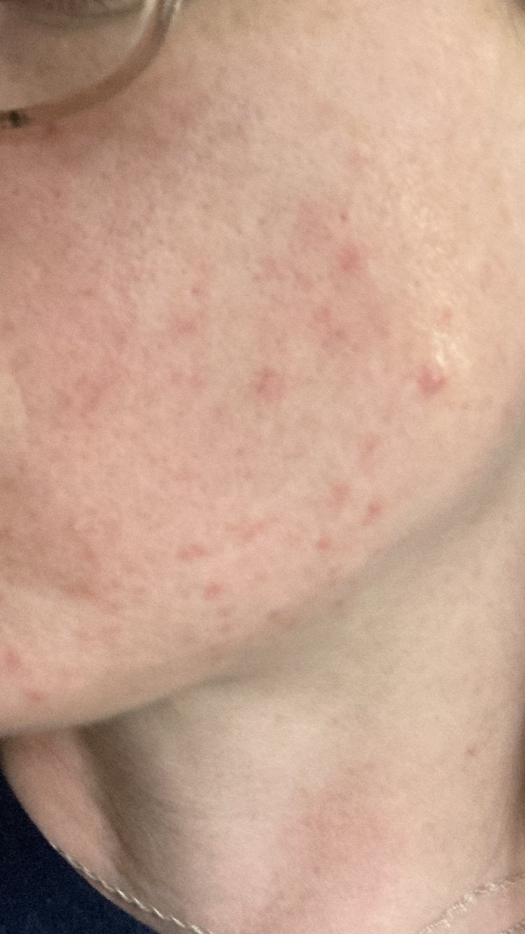 can anyone tell me what kind of acne this is? thank you so much I'm feeling really depressed [Routine Help]