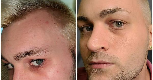 [B&A] Trust the process! 4 month progress from dry, blotchy, red, blemish prone with dark circles to mostly normal, rarely blemished and even.