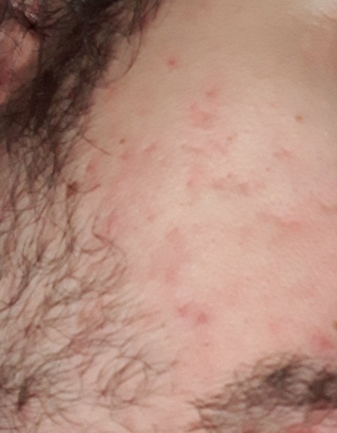 [Acne] Any pimple that I don't even touch causes these scars you see, how can I make the scars lose their colors or disappear completely?