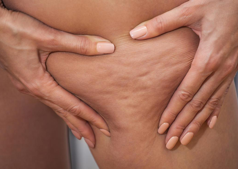 What is cellulite? What are the symptoms and causes of cellulite?