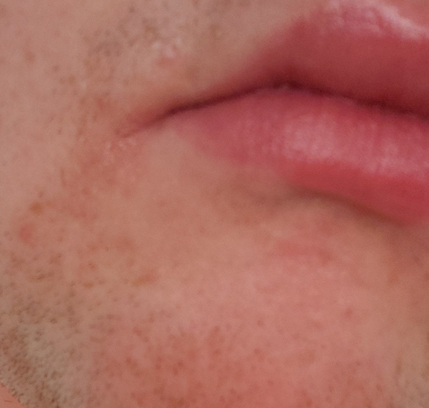[Skin Concerns] possible angular cheilitis? unsure.