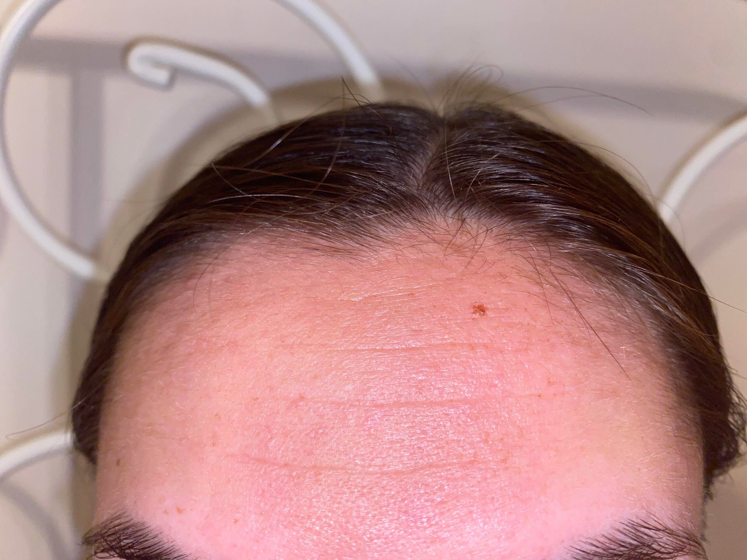 [Anti-Aging] 22 with some deeeeeep forehead lines, is there anything to do? Routine in comments!