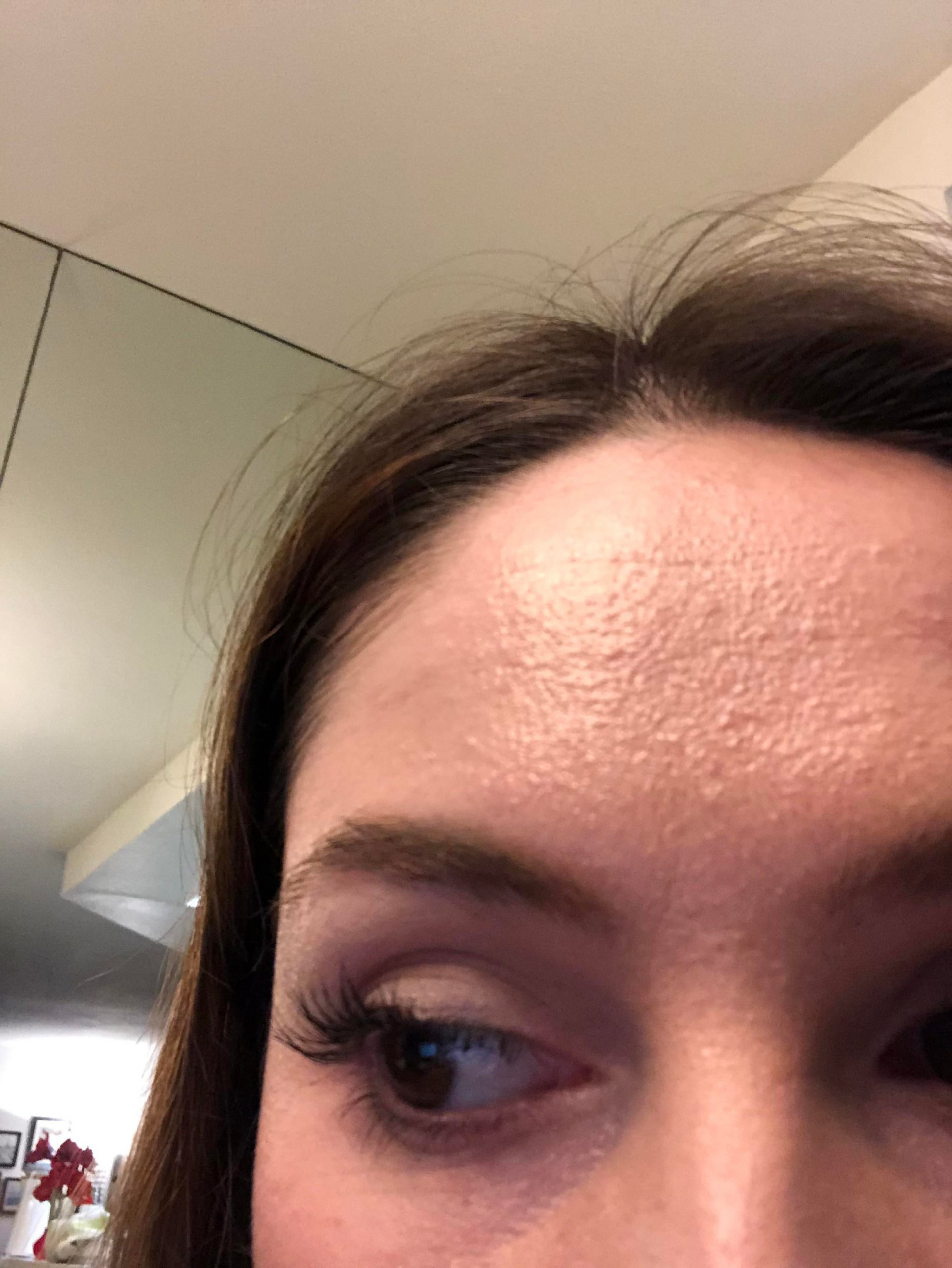 [skin concerns] Just started Differin this week. Suddenly my skin is very grainy and rough. Is this just due to dryness? Will it adjust? I have oily skin so it doesn't really feel dry…