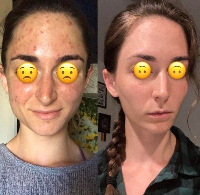 [B&A] Stopped an extremely cringey face routine and found what actually works for me
