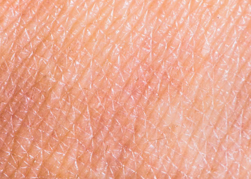 What are wrinkles? Why do we produce wrinkles? Everyone, without exception.
