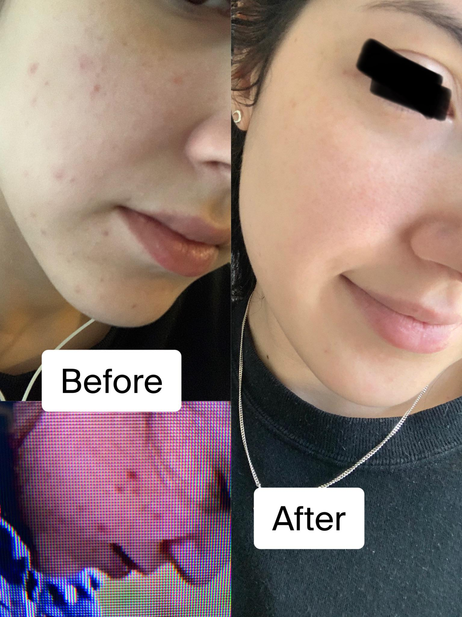[Before and after] I was suffering from these horrible deep blemishes for a while that left many dark spots in their wake. I finally have a solid routine and my skin is better than ever!