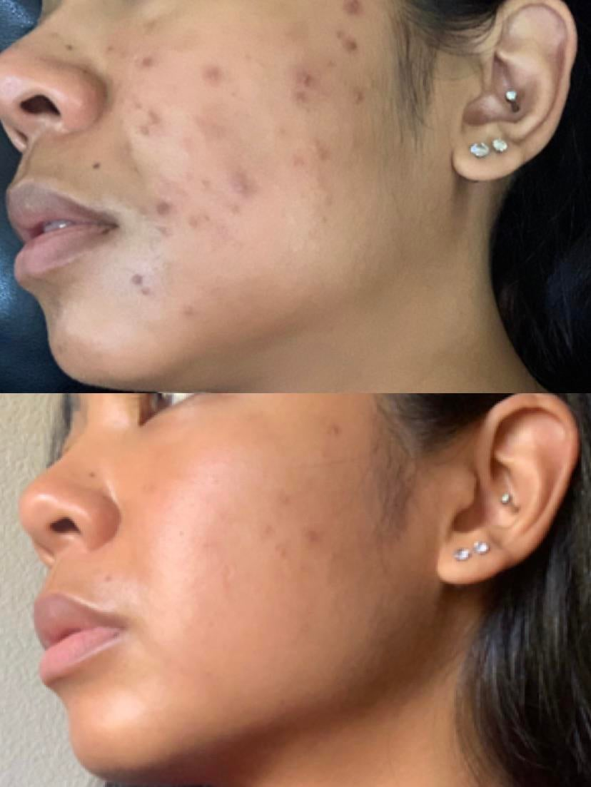 [b&a] 139 days ago and today!!!!!