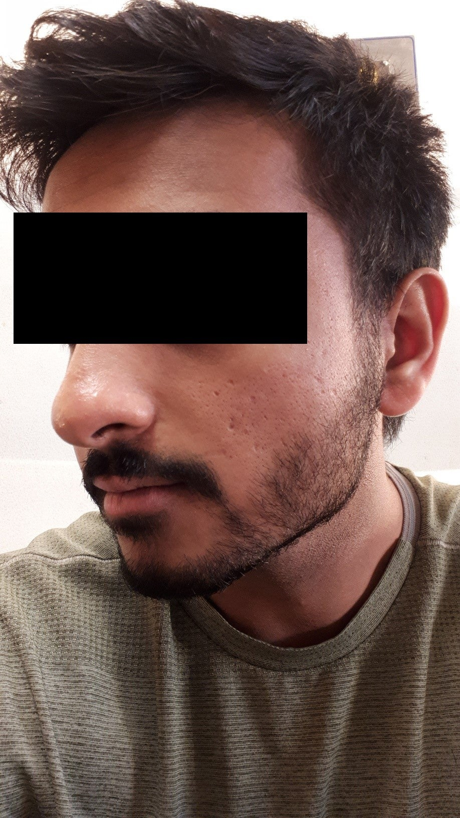 [Skin Concerns] Any tips with dealing with these acne scars?