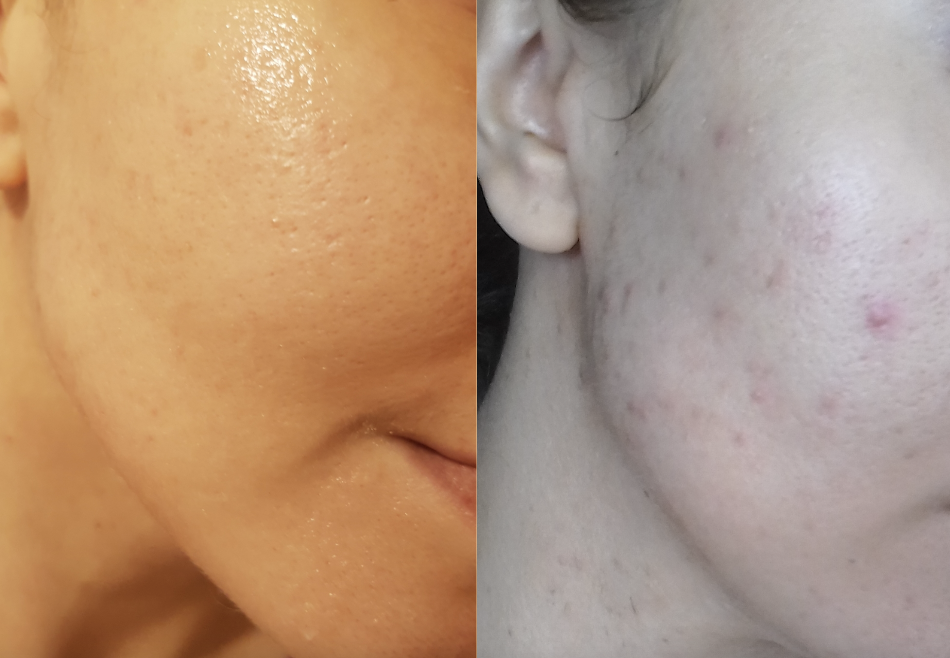 [Skin Concerns] I've managed to get from right to left (I posted an image) but still have some scarring, enlarged and clogged pores. Any suggestions? I will post current my routine below.