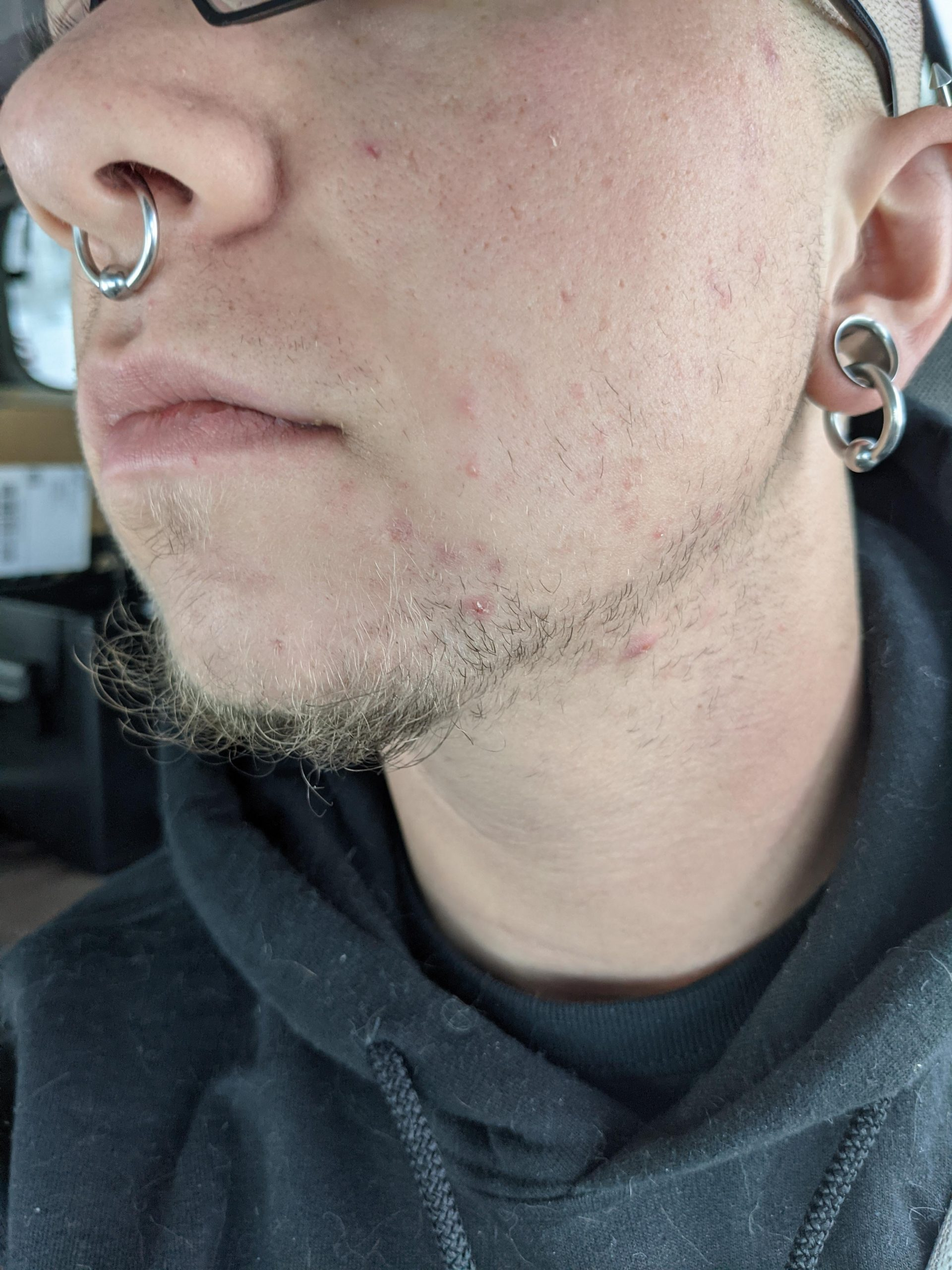 [skin concerns] Help with ingrown hairs! (Details/current routine in comments)