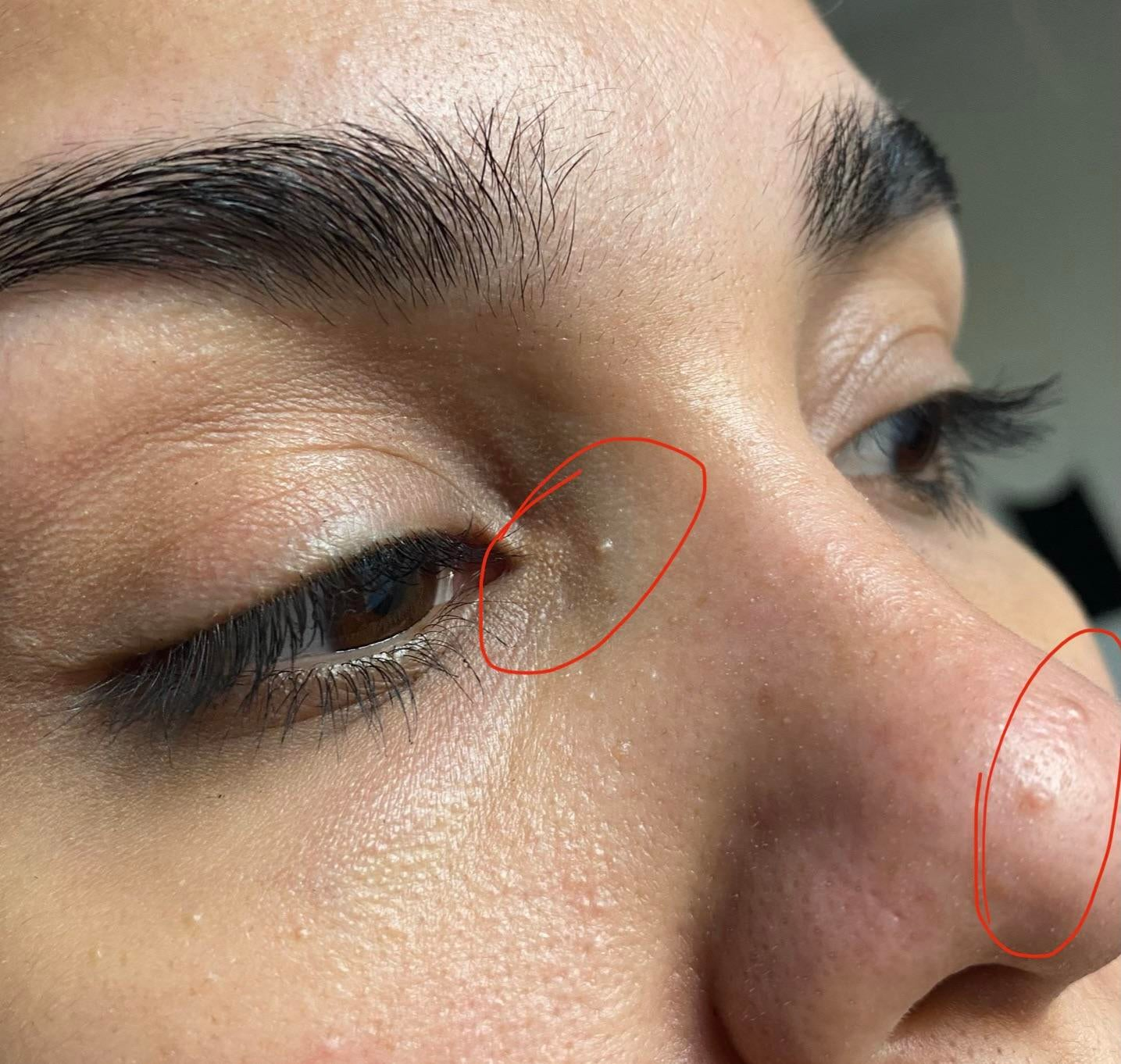 [Skin Concerns] Is this milia? I've had the two on my nose for most of my life but recently noticed the one by my eye. Can they be removed?