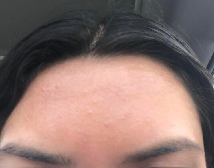 [Anti-Aging] Normal to have fine lines like this on your forehead at 17? I also have acne here I think it might be dry but idk I just started wearing sunscreen cus I just found out we're supposed to wear it everyday plus I'm using vitamin c and hyaluronic acid so could this be reversed ?