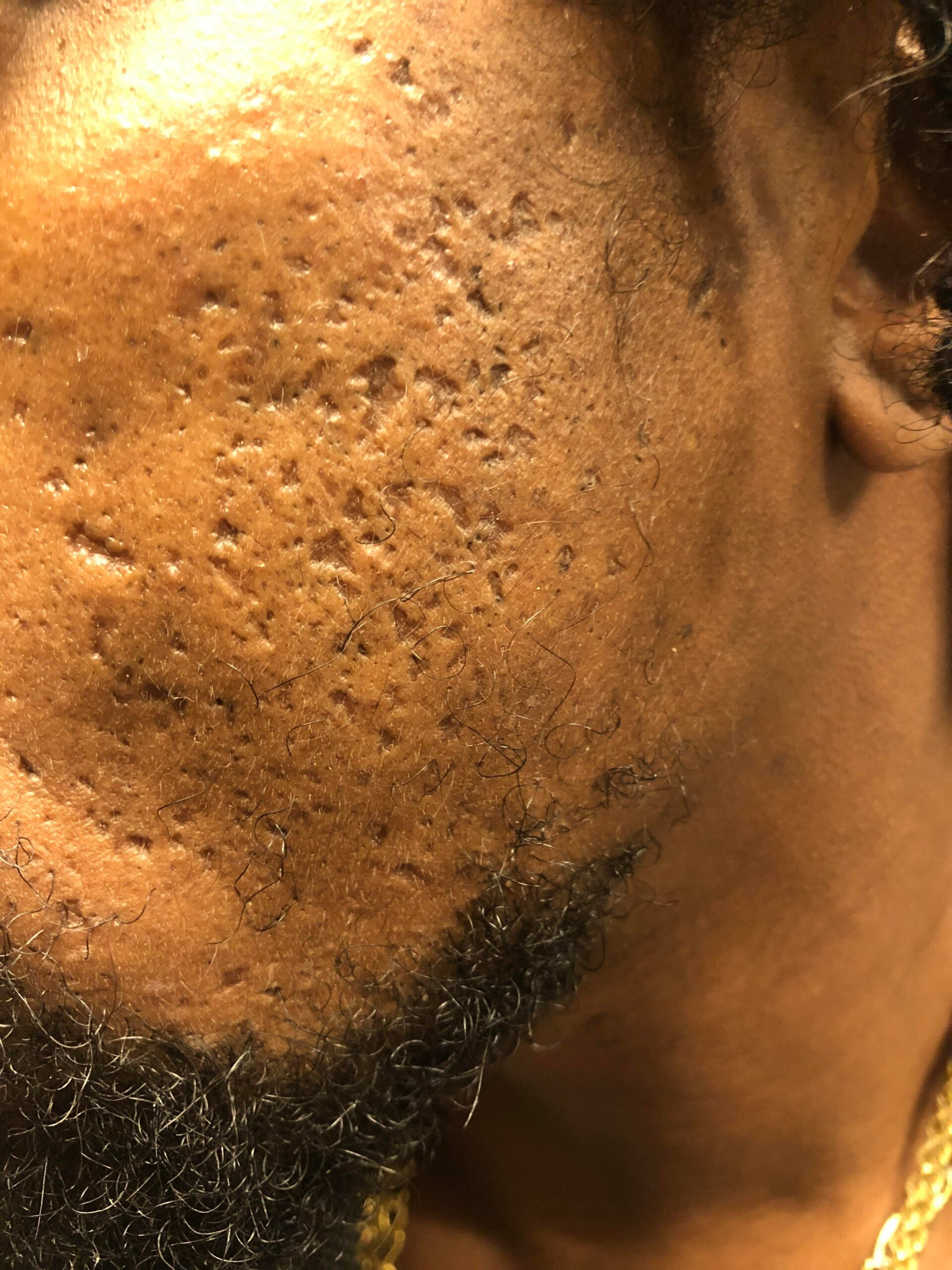 [Skin Concern] HELP!!! I get a lot of big blackheads and I have a lot of pits/craters… I really don't know what to do. Please help. I get sad looking at myself in mirror :(