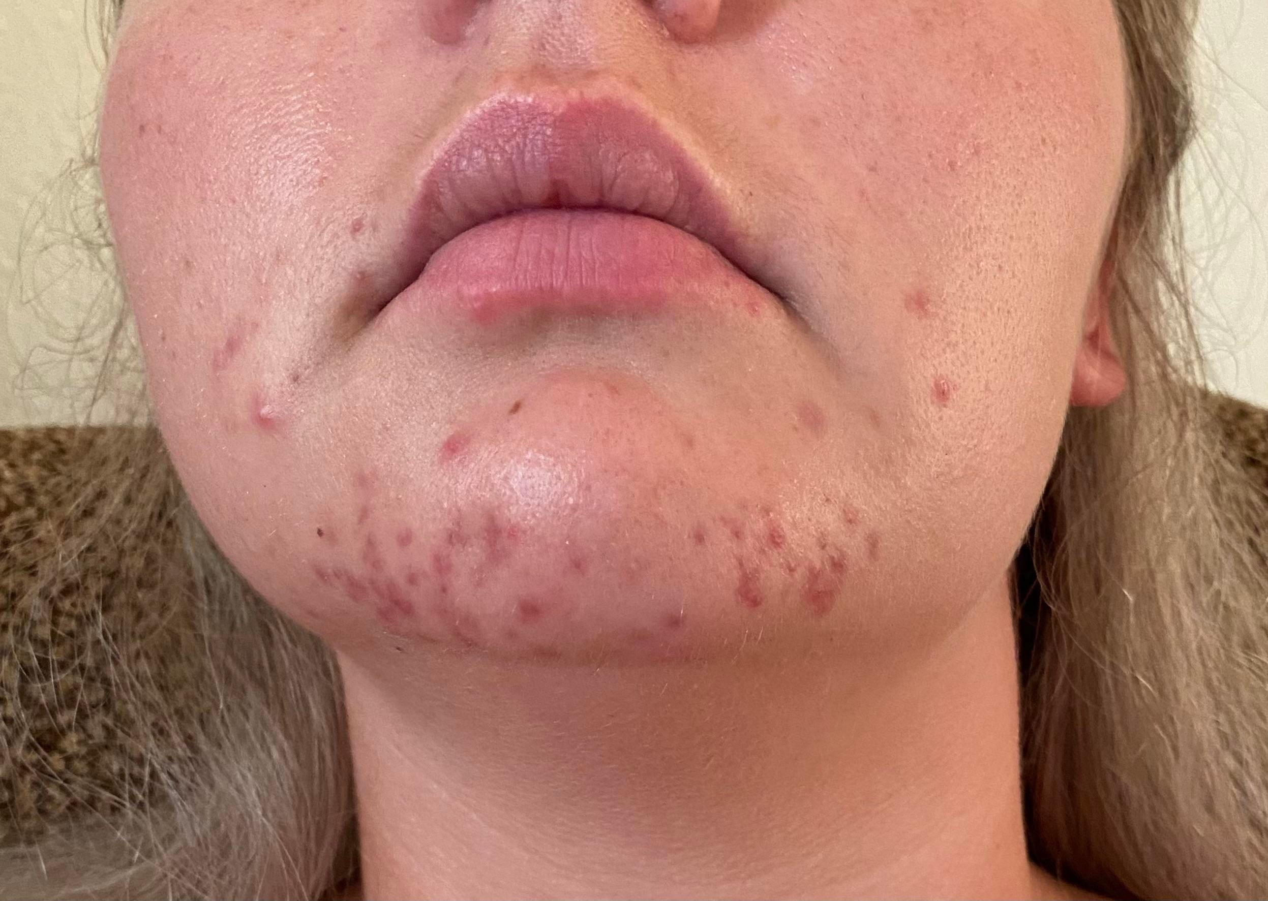 """[skin concerns] help! Initially thought I had """"maskne"""" but did not improve with SA, Dr. diagnosed peri oral dermatitis, now on antibiotics for about 2 weeks and still no improvement – any recommendations?"""