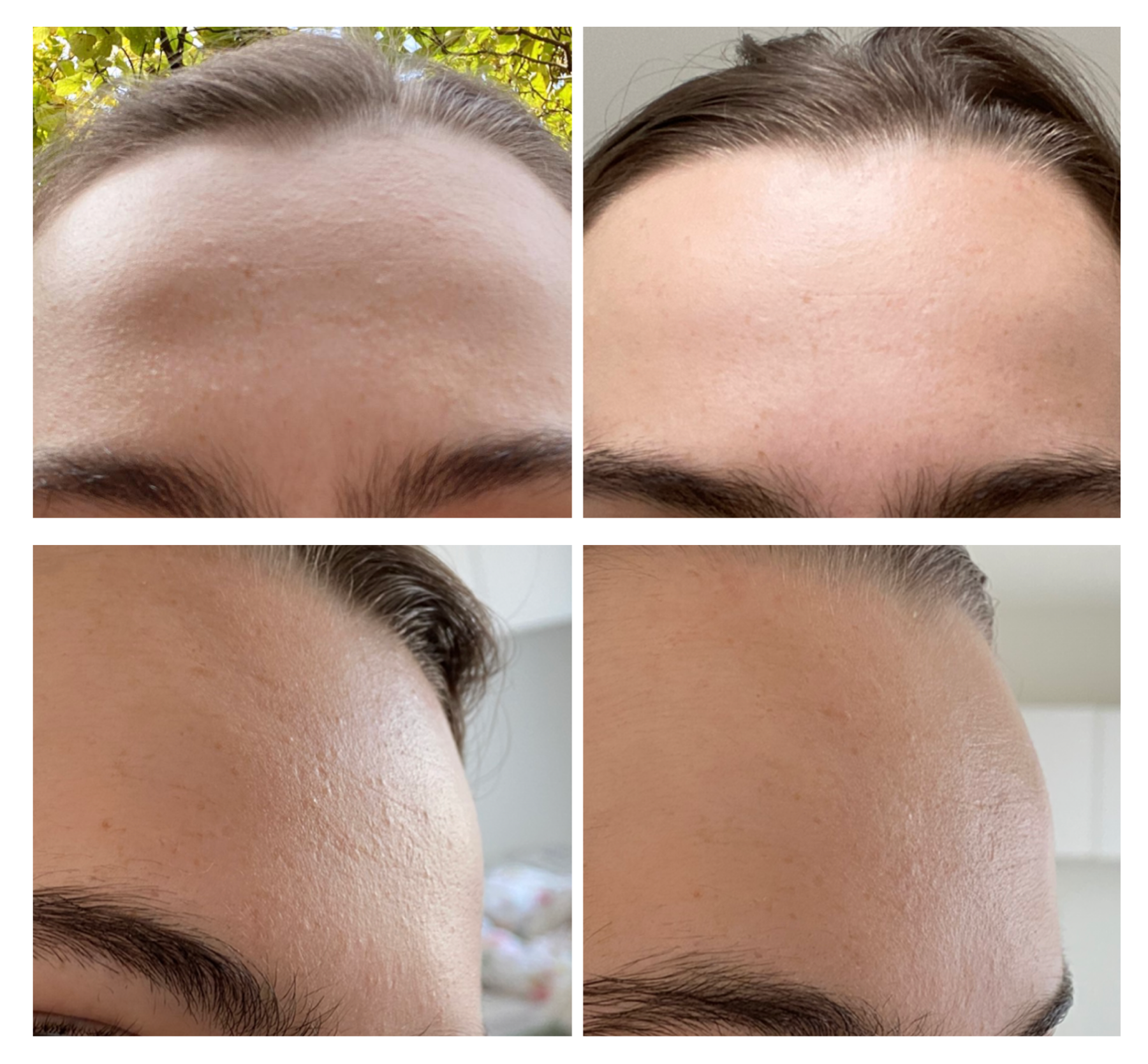 [Before and After] 4 days after I stopped using cerave in the tub my skin is near perfect again. After a couple of months of confusion and stress about my changed skin I never thought this would've been the culprit! It dried out my skin and clogged my pores.