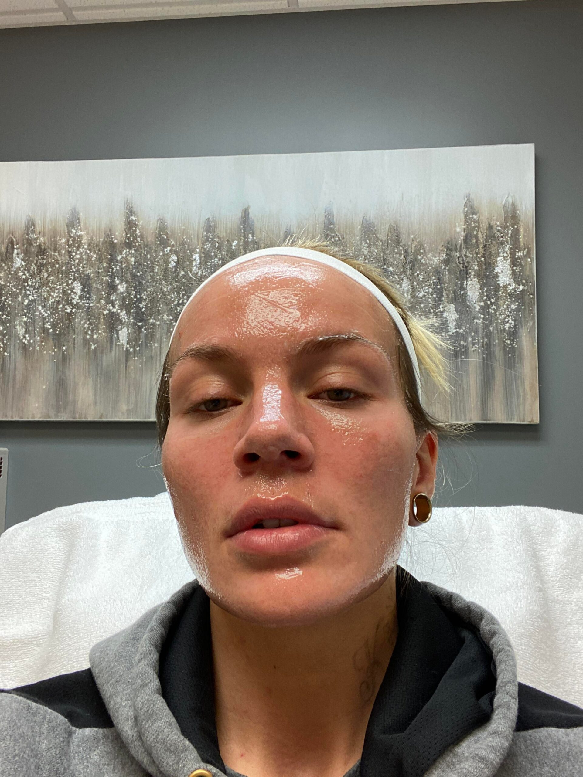 [Review] I'm about to get DeepFX CO2 laser resurfacing. Wish me luck!