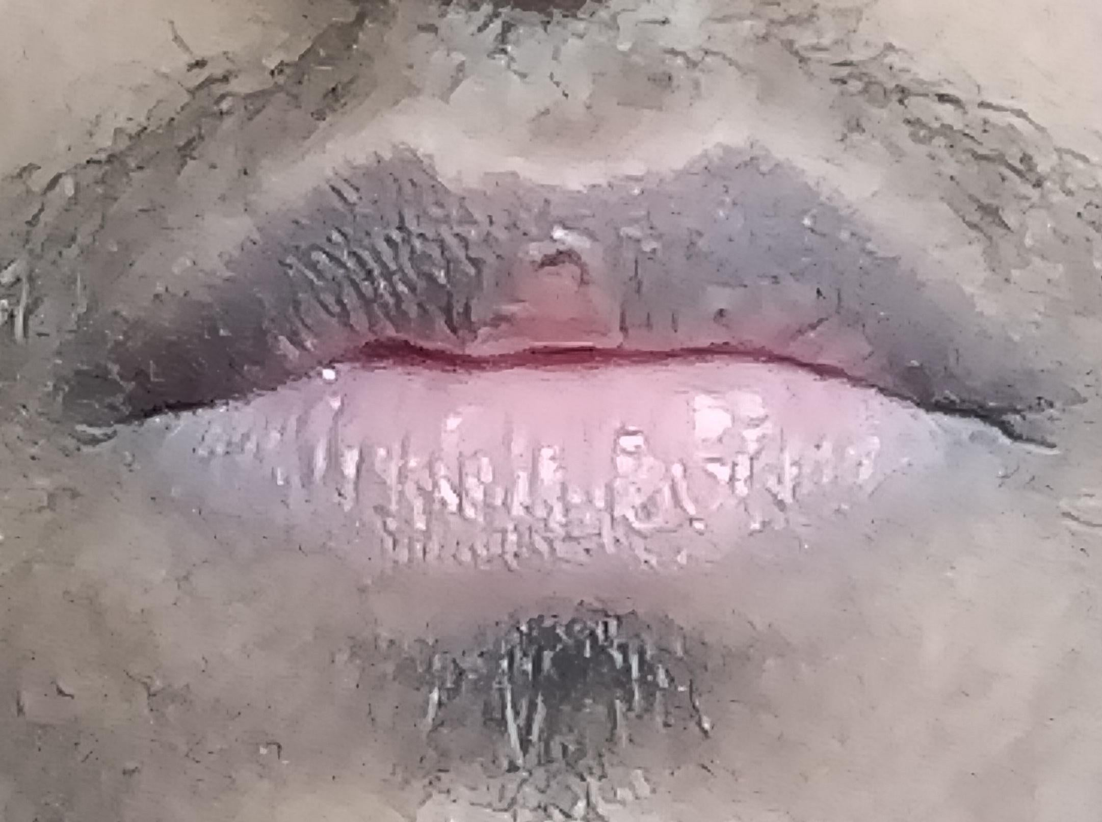 [Skin concern] My lips have become dark and the procheilon ( the middle part of the upper lip ) looks like this. It peels a lot. Is there any way I can treat the darkness at home or the procheilon at home ? If not , would getting surgery change my lip shape ?
