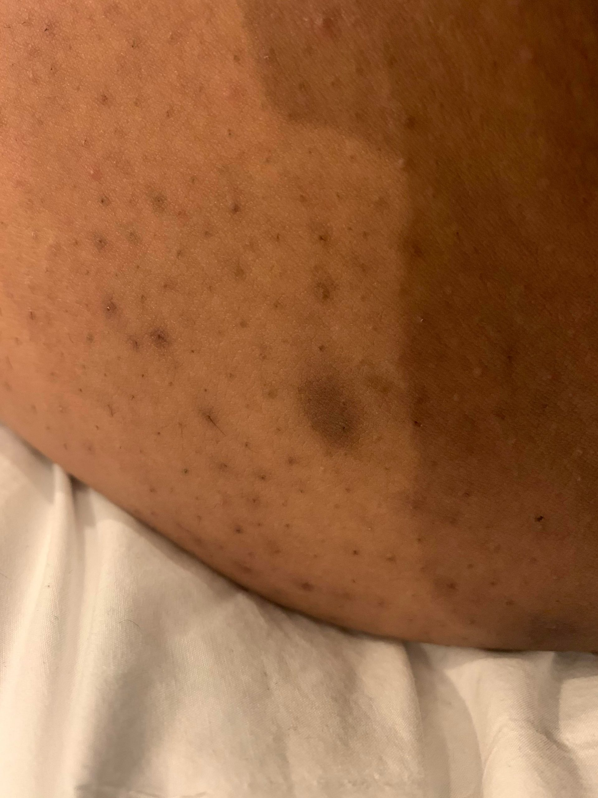 [Skin Concern] I have these kinda black dots all over my thighs, outside and inner. Whenever I try to touch them they don't really feel like anything. How can I get rid of them?