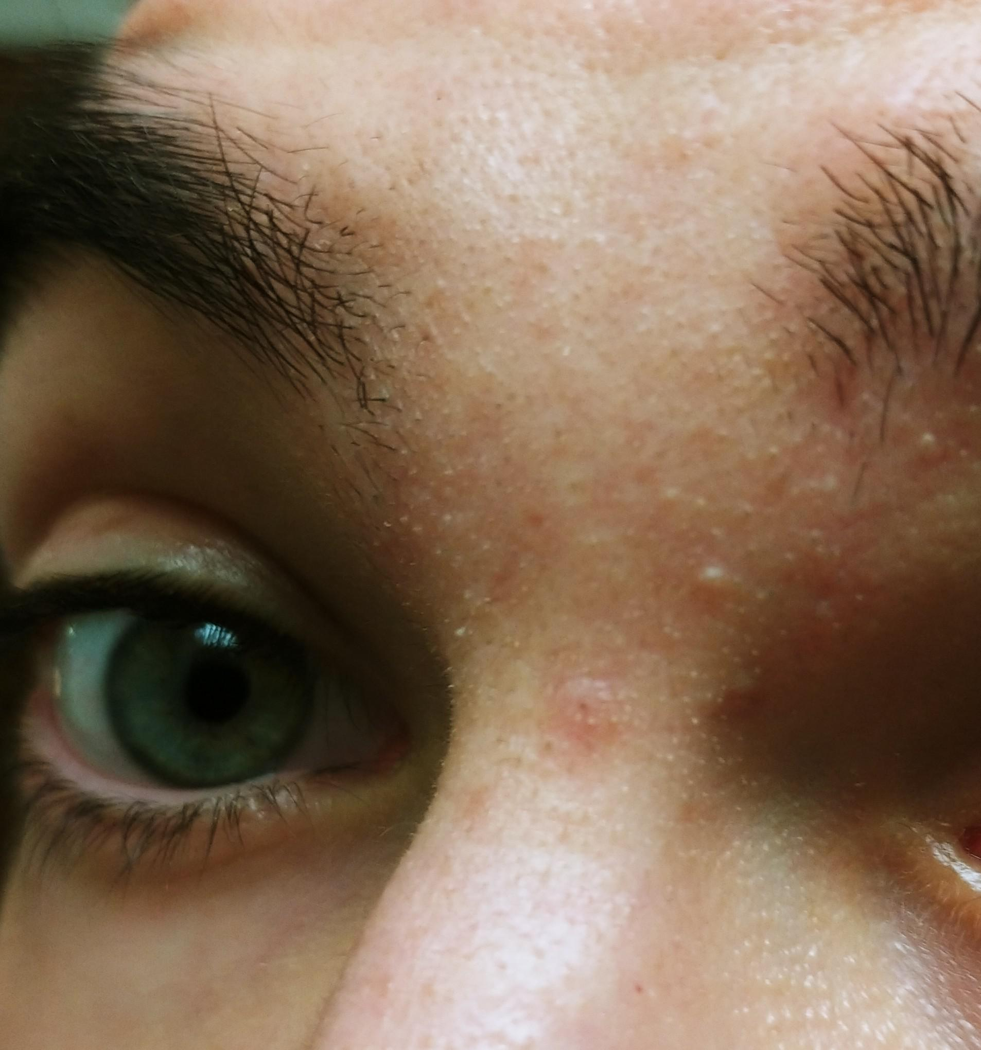 [Skin Concern] Every couple of weeks I get small whiteheads/spots around my brow area. What could help this troubled area?