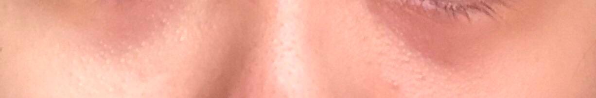 [Skin Concerns] Which products/ingredients should I be looking for to get rid of my reddish purple eyebags and puffiness?