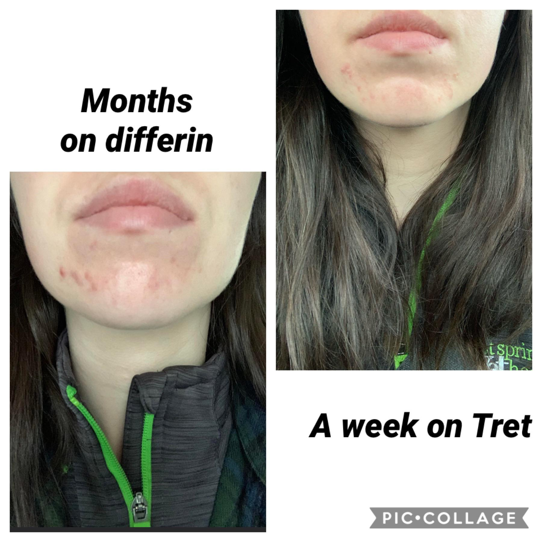 [b&a] [acne] finally over my plateau – routine in comments
