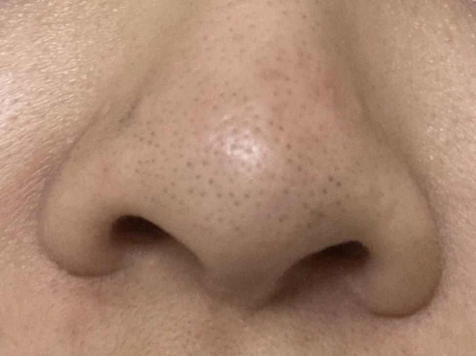 [Skin Concerns] Blackheads or sebaceous filaments?