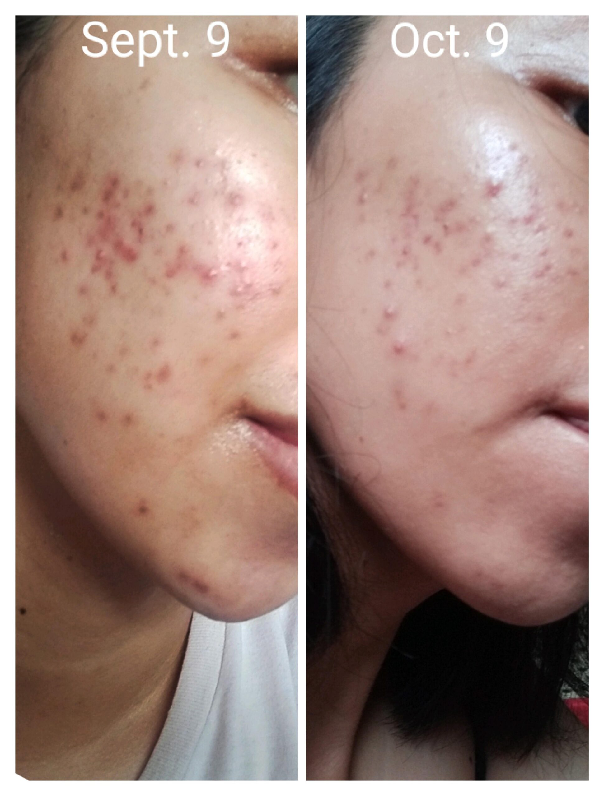 [B&A] In 3rd month of constantly purging, I'm able to see improvements today. More in comments.