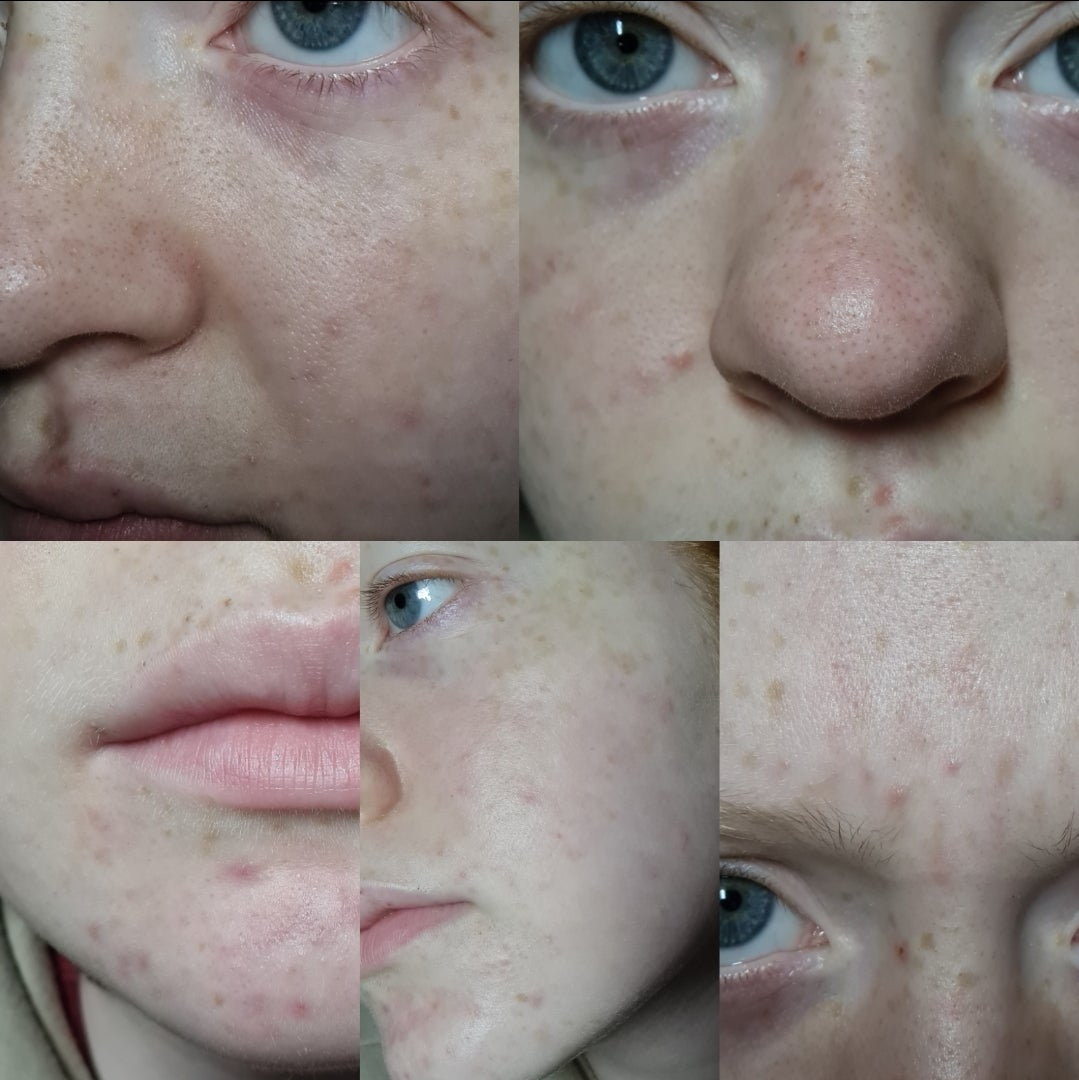 I'm at wit's end with my skin, advice? [Routine Help]
