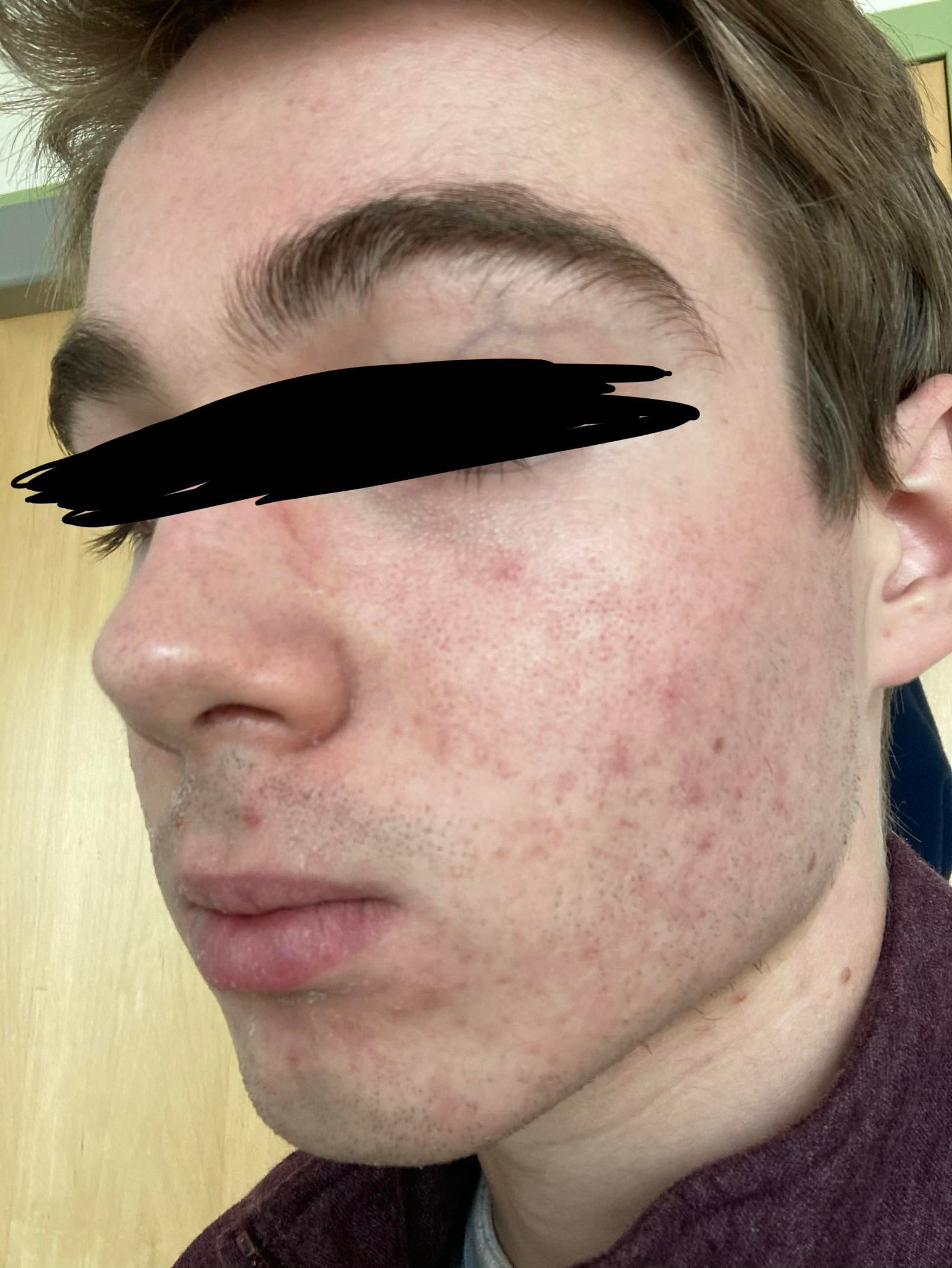 [Skin concerns] I've been dealing with acne for 5 years now and recently it's gotten worse. Could use any suggestions you have