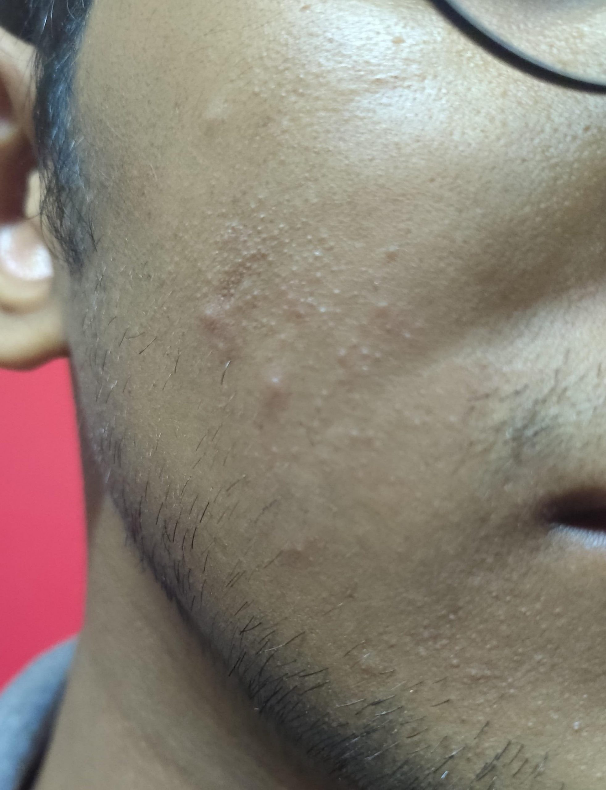 [skin concerns] how to get rid of little bumps on cheeks