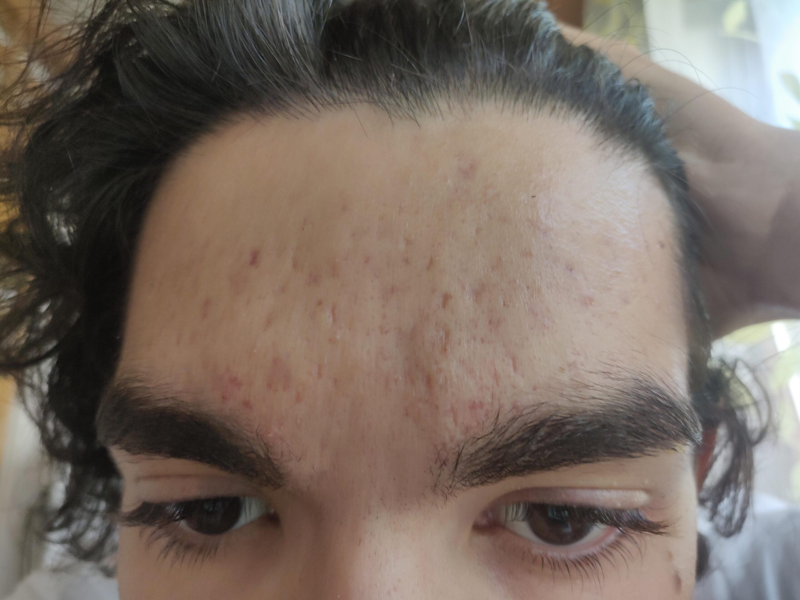[skin concern] I've had these (red) dots on my forehead since years. I'm 20 now and I still couldn't find the right solution for this. Can somebody help?