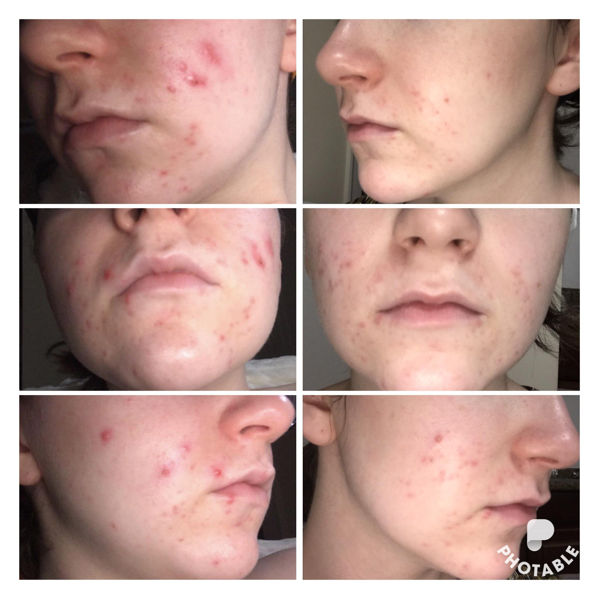 [B&A] 2 months, 4 days on Spironolactone